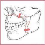 【颚骨整形】好久不见了!我因颚变形症去做了个手术。【上海から愛を叫ぶ】